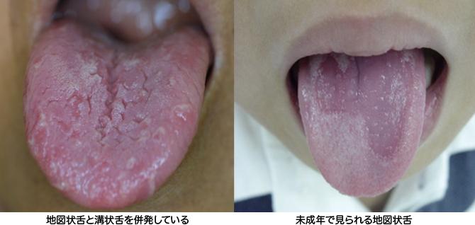 ヒリヒリ 舌
